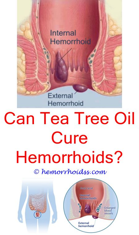 Picture Of Dog Hemorrhoids : picture, hemorrhoids, Hemorrhoids