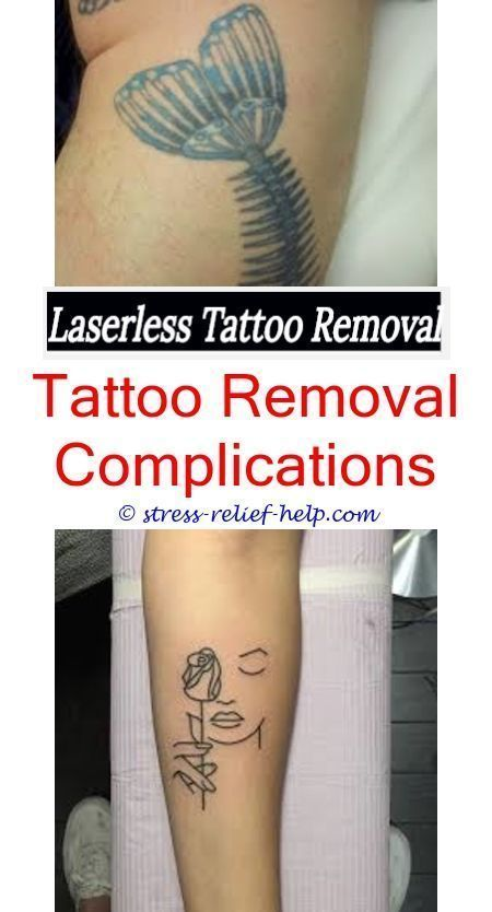 Small Tattoo Removal How To Remove A Tattoo At Home With Lemon Juice How To Make Homemade Tattoo Removal Crea Tattoo Removal Cost Laser Tattoo Tattoo Removal
