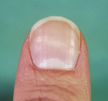 9 Best Damagednail Images On Pinterest Pitted Nails Fingernail Ridges And Vertical Nail