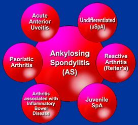 Finally, a breakdown of diseases in the Spondyloarthritis family.....Yess! http://www.spondylitis.org/about/overview.aspx to learn more about Ankylosing Spondylitis & Related Diseases Info.