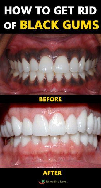 How To Get Rid Of Black Gums Blackgums Gums Https Www Remedieslore Com How To Get Rid Of Black Gums Black Gums Gum Treatment Gum Bleaching