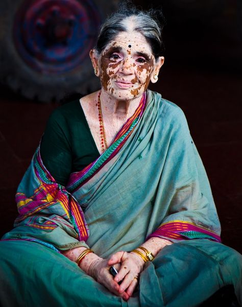 Photo and caption by Katarina Benzova  Woman during her praying inside of a temple. This beautiful lady has vitiligo, a common skin condition that causes depigmentation of parts of the skin.Unfortunately in India, a lot of social stigma is attached to the disease and patients are treated as outcasts sometimes living in the temples or on the streets. Aside from that, you can feel her warmth, balance and beautiful soul.