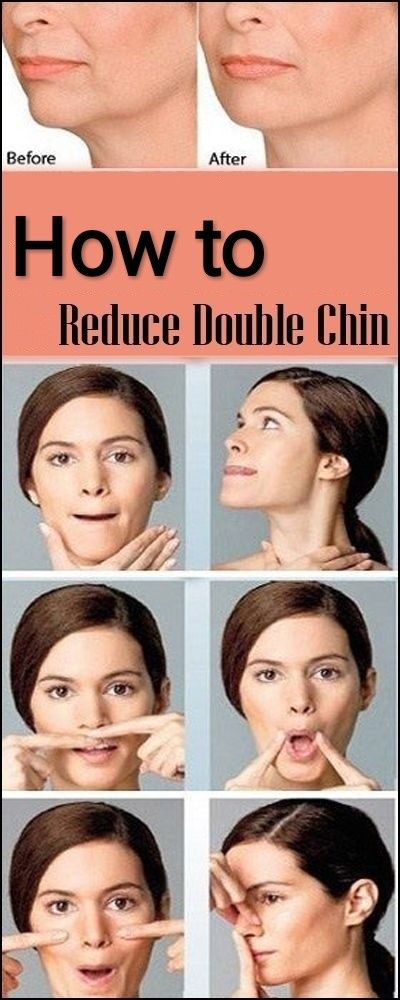 How To Reduce Double Chin In 2020 Reduce Double Chin Double Chin Exercises Double Chin