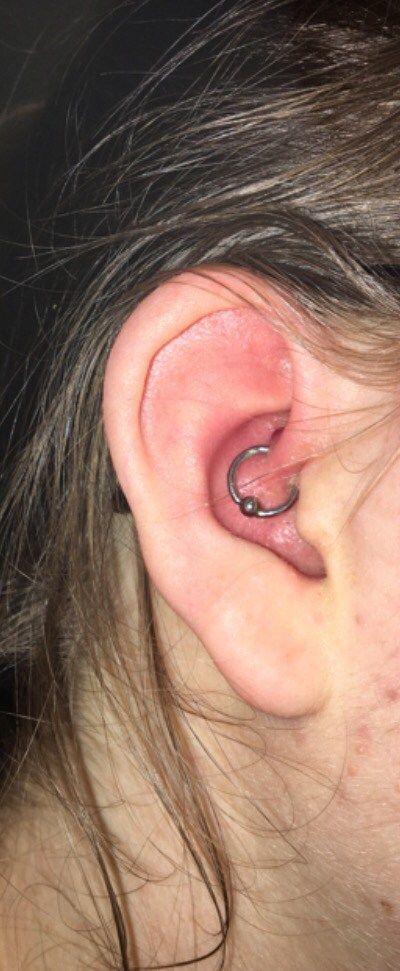 Daith Piercing Update Bumps And Healing Daith Piercing