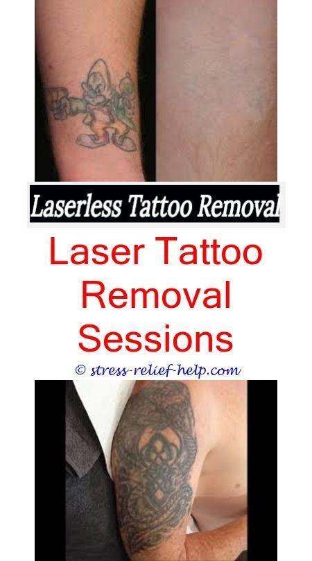 Tattoo Removal Diy