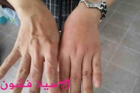 خلطات لتسمين اليدين سيلا فشون