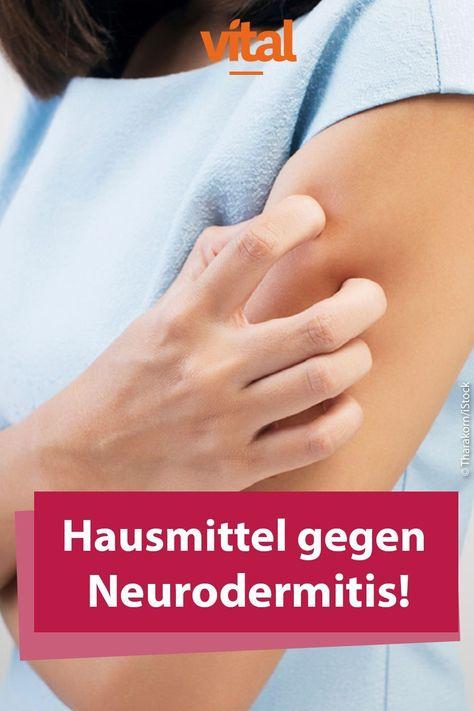 # against # home remedies # neurodermatitis home remedies for neurodermatitis, #home #neurodermatitis #remedies