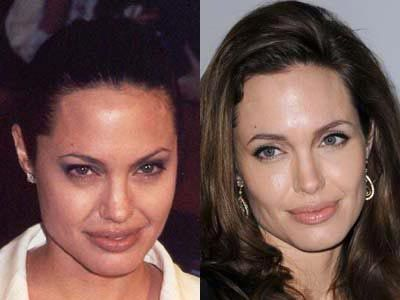 Angelina Jolie Before And After Crowsfeet Natural Botox Crows Feet Botox All Natural Skin Care