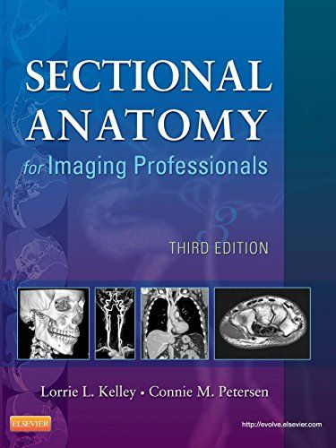 Free Download Pdf Sectional Anatomy For Imaging Professionals