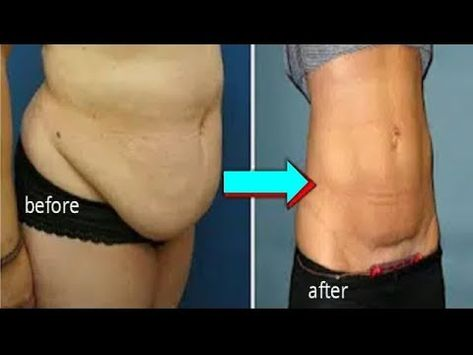 LOST HANGING BELLY FAT AFTER C SECTION OR AFTER BIRTH - YouTube
