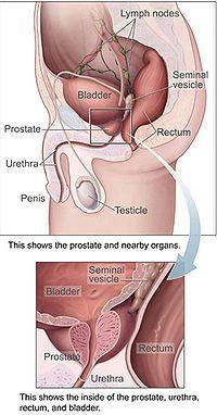 en pae para la próstata