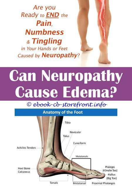 Pin On Neuropathy Treatment At Home