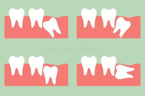 răng khôn mọc xiên