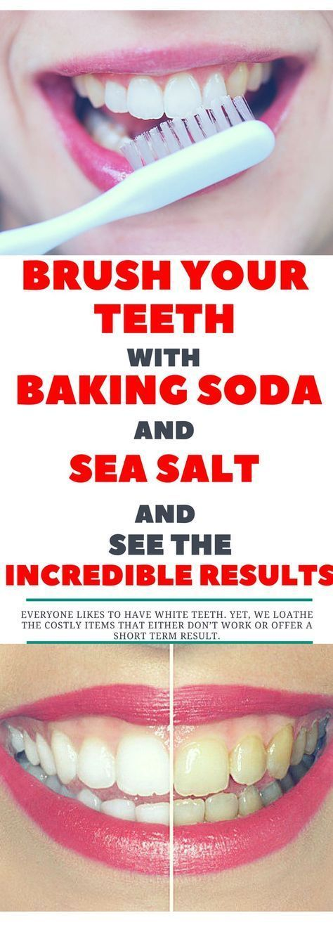Brush Your Teeth With Baking Soda And Sea Salt And See The Incredible Results Oralhealthteeth Baking Soda Teeth Oral Health