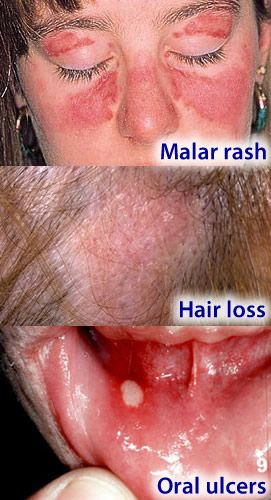 Skin Lesions With Images Oral Ulcer Ulcers Autoimmune