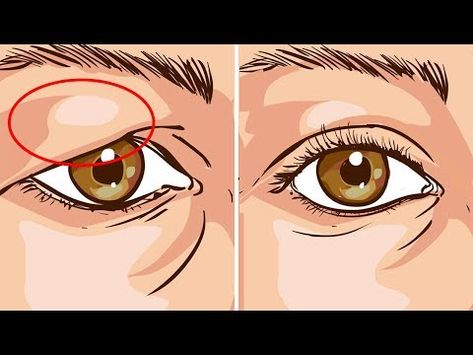 How To Treat Droopy Eyelids Naturally... The Results Are Amazing! - YouTube