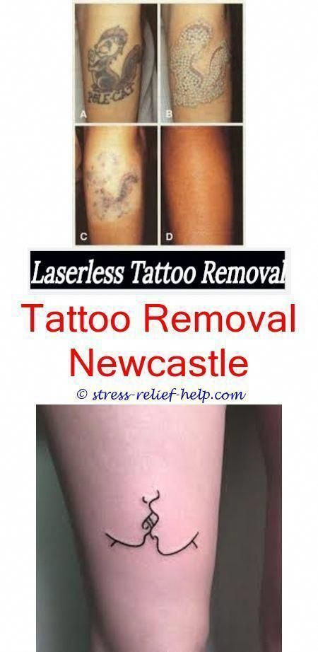 How To Remove Tattoos Yourself Can You Have Laser Tattoo Removal