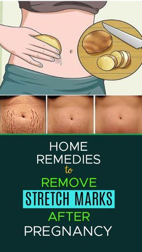 6e5eba1e82f357dabb77736b5cb1ff09 - How To Get Rid Of Pregnancy Stretch Marks On Belly