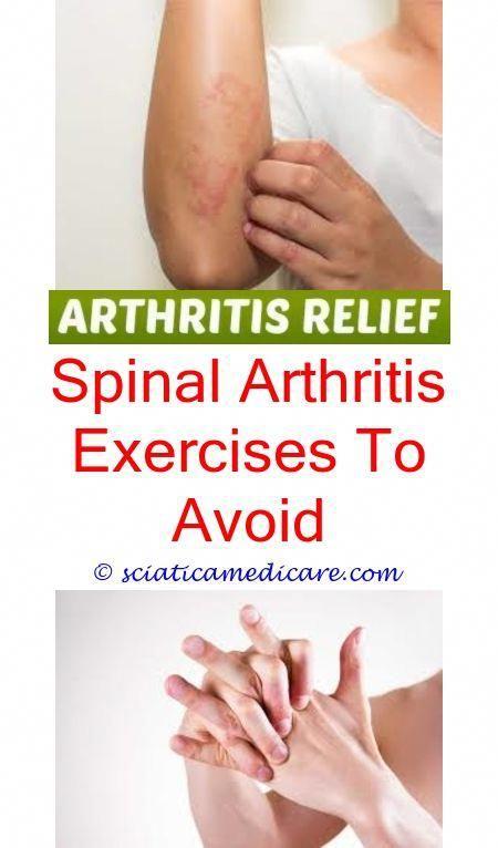 6e6bab542a7b3c57fb9a2c0db28921dd - How Long Does It Take To Get Over Reactive Arthritis