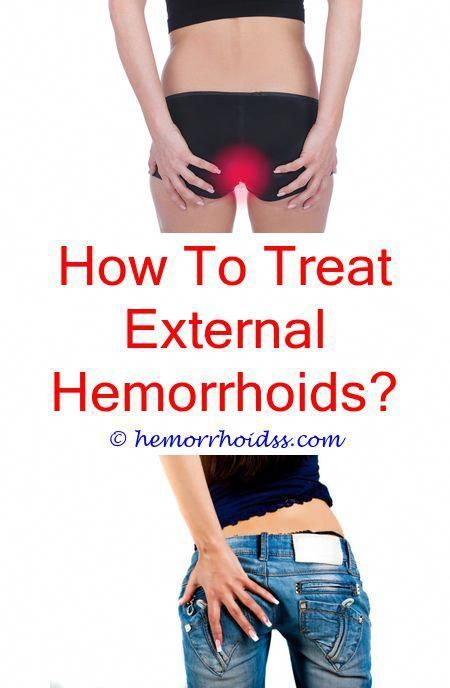 25 Getting Rid Of Hemorrhoids Ideas Getting Rid Of Hemorrhoids Hemorrhoids Hemorrhoid Remedies