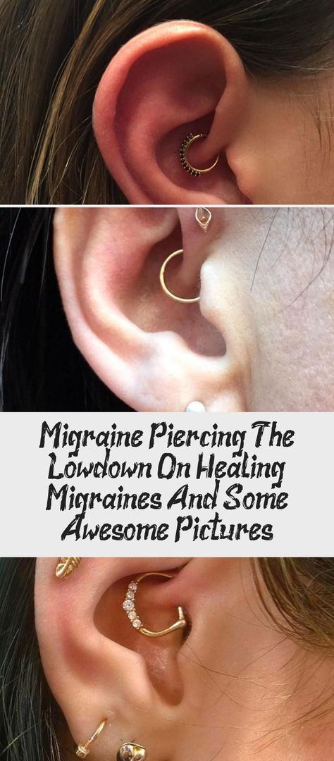 Migraine Piercing: The Low-down On Healing Migraines And Some Awesome Pictures - Piercing -  - #awesome #healing #Lowdown #Migraine #migraines #pictures #piercing
