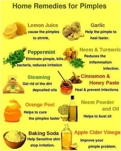 No Longer Struggle With Embarrassing Acne Health And Skin Care Home Remedies For Pimples Home Remedies For Acne Natural Acne Remedies