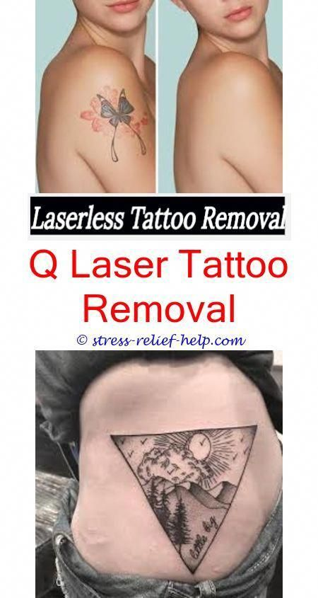 How To Remove A Permanent Tattoo Without Laser How Is A Tattoo Removed By Laser Tattoo Removal Surrey Tattoo Removal Diy Tattoo Diy Tattoo Permanent Tattoos
