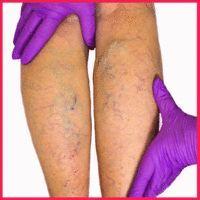 Castanele varice - Artrită