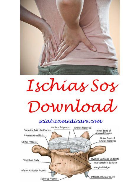 Eingeklemmter Ischias Ischias Ischias Symptome Und Ischiasschmerzen