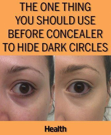 Ever conceal over dark under eye circles, only to look even