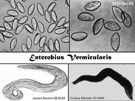 enterobius vermicularis pinworms kezelés