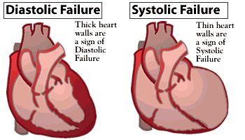 Systolic heart failure | ภาพจาก http://www.afmc.org/Graphics/consumer/healthinfo ...