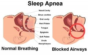 SLEEP APNEA HOME REMEDIES- for Jeff?