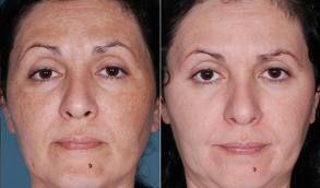 Een chemische peel is een efficiënte en eenvoudige manier voor de behandeling van acné, pigmentvlekken en huidverjonging. Hierbij wordt een vloeistof op de huid aangebracht die de bovenste lagen huidcellen verwijdert. Met het herstellen van de huid wordt de collageensynthese bevorderd, de opperhuid meer gehydrateerd en steviger en de hoorncelverbinding verbeterd.