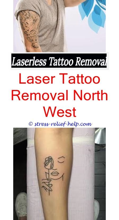 Laser Tattoo Removal Near Me How Much Does A Tattoo Removal Laser Machine Cost Is There A Way To Remo Tattoo Removal Cost Laser Tattoo Eyebrow Tattoo Removal