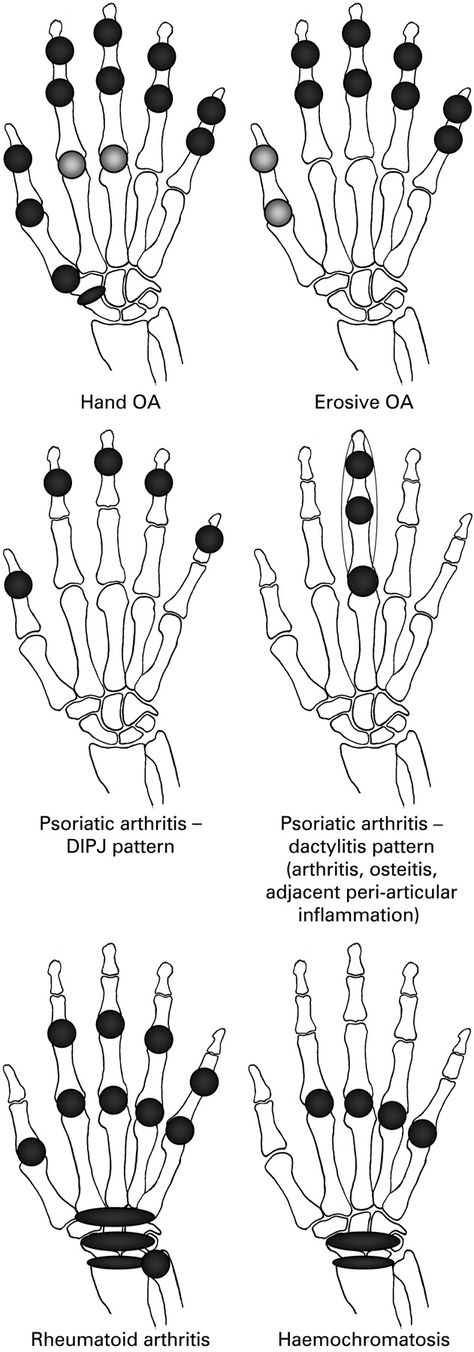 Hand involvement in different types of arthritis
