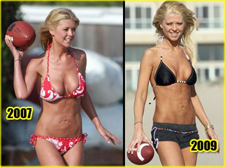 We all know about Tara Reid's liposuction disaster back in the mid This before and after photo shows how the plastic surgeon completely botched her stomach.
