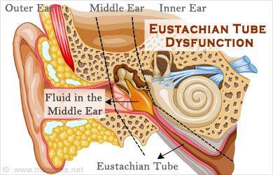 Eustachian Tube It Is An Abnormal Condition Eustachian Tube Dysfunction Fluid In Ears Ear Pressure