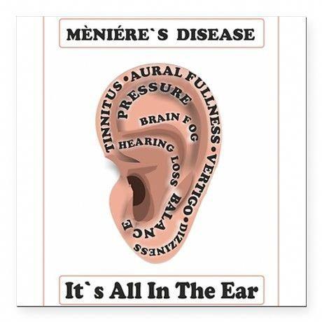 Ménière's Disease : It's all in the ear  Tinnitus, Aural