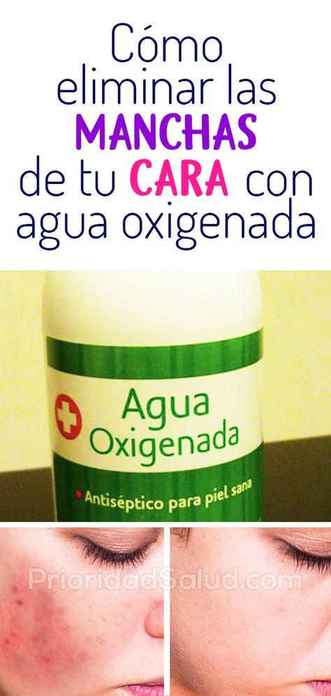 Manchas cara eliminar oxigenada con la en agua