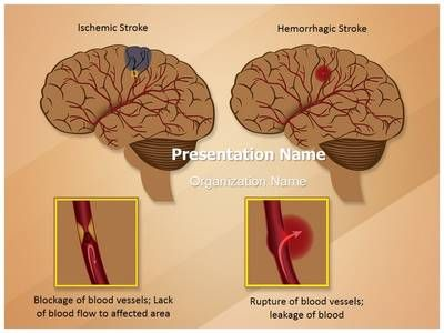 Blood Cells PowerPoint Template Use our collection of #Blood - brain powerpoint template