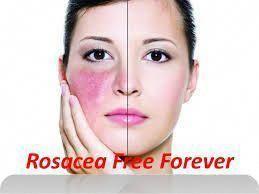 Rosacea Skin Care Rosacea Rosacea Skin Care Natural Rosacea