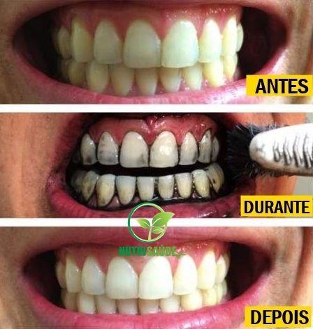 Whitemax Clareador Como Eu Clareei Meus Dentes Em Menos De 5