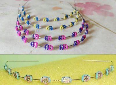الوان تقويم الاسنان لعلاج تشوهات الأسنان والذي نقدم عنه كافة التفاصيل عن كيفية تركيب التقويم واختيار لون التقوي Ashley Johnson Beaded Bracelets Beaded Necklace