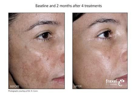 Great Skin Care Tips Means Great Skin For You In 2020 Natural Skin Lightening Hyperpigmentation Treatment Lighten Skin