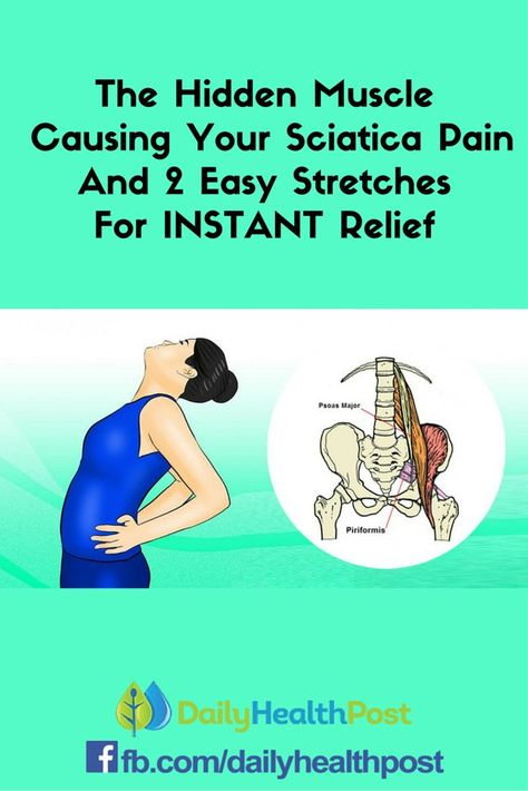 The Hidden Muscle Causing Your Sciatica Pain And 2 Easy Stretches For INSTANT…