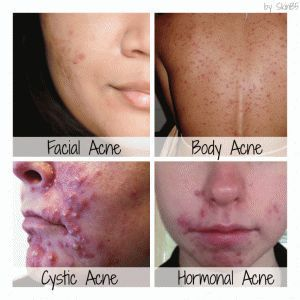 Back Acne And Neck Acne Get Rid Of It Quickly And Permanently Pimples On Neck And Jawline Acnescars Neck Acne Cystic Acne Remedies Cystic Acne Treatment
