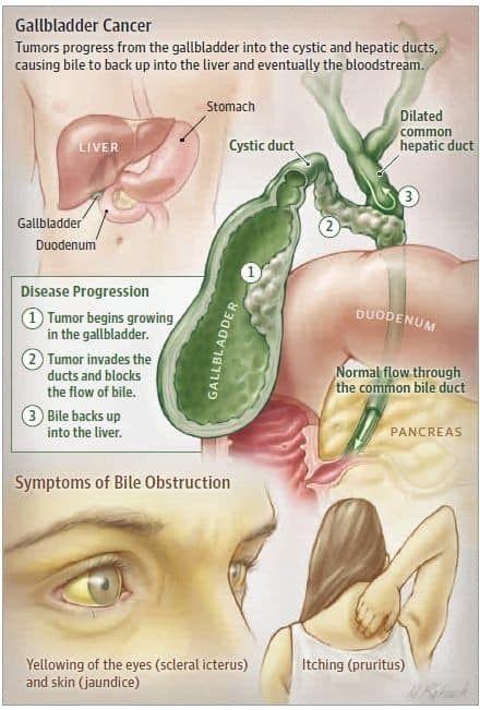 Cancer hepatic nursing. Cancer hepatic (de ficat) - Tot ce trebuie să ştii | Cancer