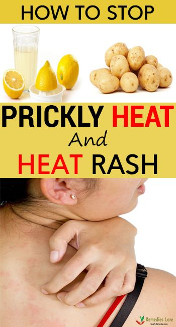 77eb828dbf765dbd2c857afe83b37205 - How To Get Rid Of Prickly Heat In Babies