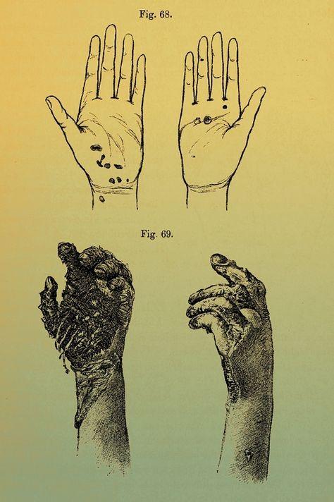 Effects of lightning strikes on the human body | Elektropathologie, 1903  [edited]
